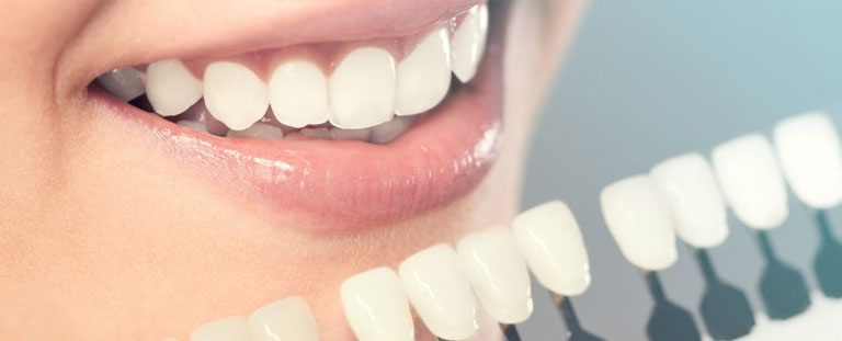 5 MOST POPULAR COSMETIC DENTAL PROCEDURES